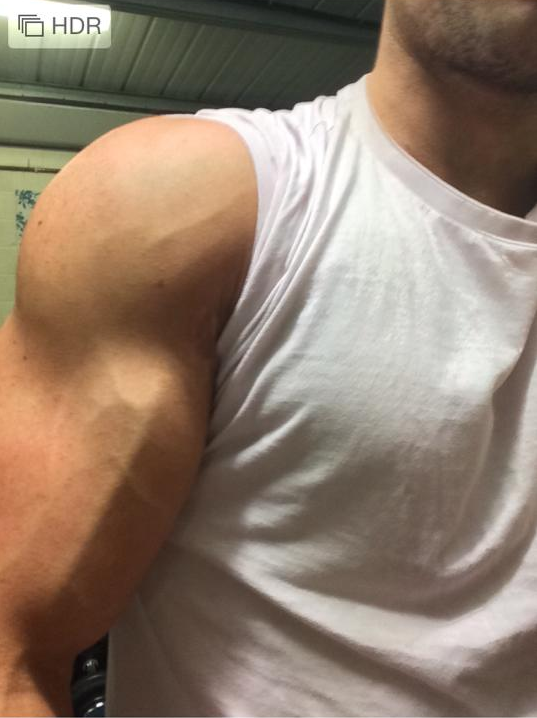 How to Get Visible Veins on Arms